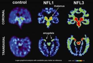 concussion scans